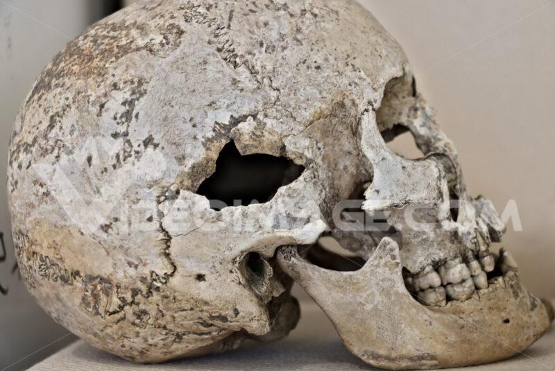 Ancient human skull. Bones of an ancient Roman skull. - MyVideoimage.com