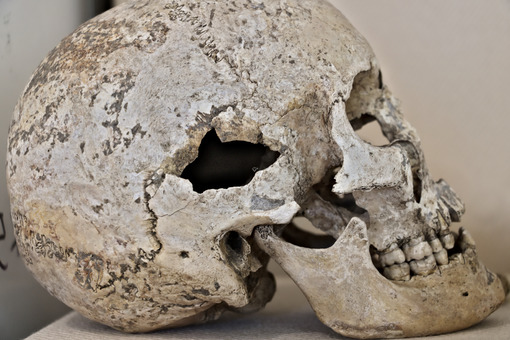 Ancient human skull. Bones of an ancient Roman skull. - MyVideoimage.com
